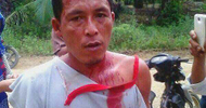 Thumb_2016-11-22_zulkifli_-_a_farmer_who_was_injured_in_the_protest